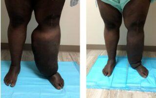 Lymphedema Treatment