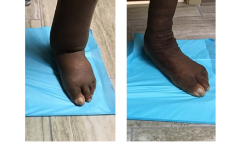 Before and After Lymphedema Treatment