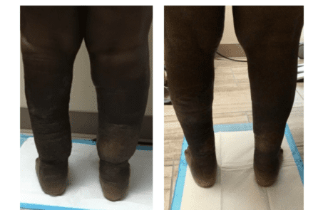 Lymphedema Therapy Specialists before and after
